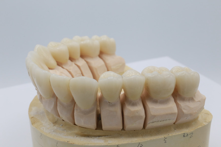 Dental Stone Model With Multilayer Zirco