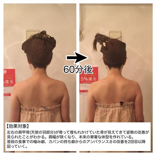 【効果対象】 左右の肩甲骨(天使の羽部分)が寄って埋もれかけていた骨が見えてきて姿勢の改善が見られることがわかる。肩幅が狭くなり、本来の華奢な体型を作れている。普段の食事での噛み癖、カバンの持ち癖からのアンバランスさの改善を2回目以降図っていく。