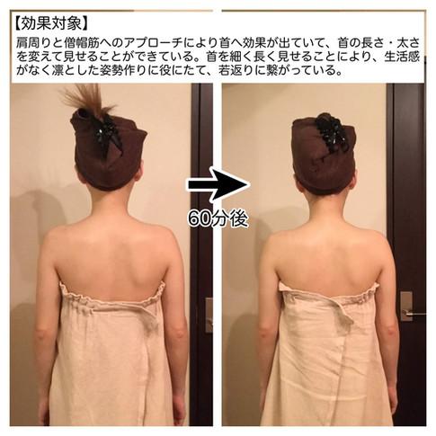 【効果対象】 肩周りと僧帽筋へのアプローチにより首へ効果が出ていて、首の長さ・太さを変えて見せることができている。首を細く長く見せることにより、生活感がなく凛とした姿勢作りに役に 立て、若返りに繋がっている。