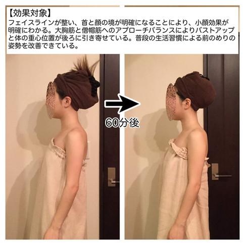 【効果対象】 フェイスラインが整い、首と顔の境が明確になることにより、小顔効果が明確にわかる。大胸筋と僧帽筋へのアプローチバランスによりバストアップと体の重心位置が後ろに引き寄せられている。普段の生活習慣による前のめりの姿勢を改善できている。