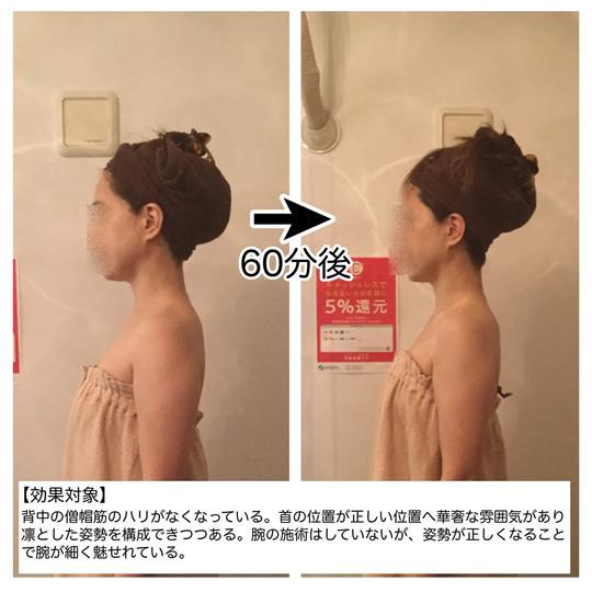 【効果対象】 背中の僧帽筋のハリがなくなっている。首の位置が正しい位置へ戻り、華奢な雰囲気があり、凛とした姿勢を構成できつつある。 腕の施術はしていないが、姿勢が正しくなることで腕が細く魅せれている。