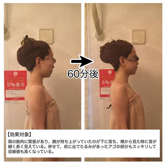 【効果対象】 肩の筋肉に緊張があり、腕が持ち上がっていたのが下に落ち、横から見た時に首が細く長く見えている。併せて、前に出ていたたるみがあった顎の部分もスッキリして目線値も高くなっている。