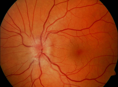 Illinois Eye Institute selected as one of 20 clinical trial centers for national study