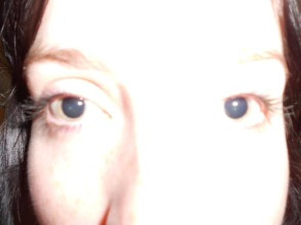 mydriatic pupils