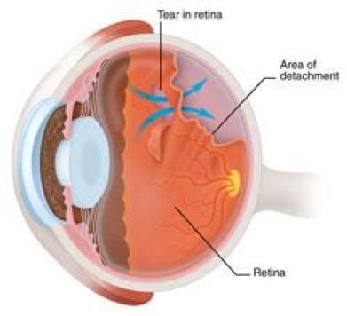 retinal_tear.png