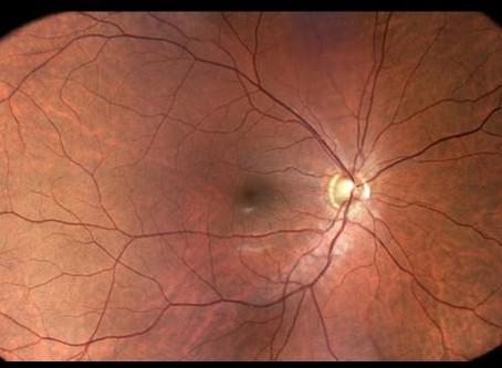 Eidon Wide-Field Camera Installed in Illinois Eye Institute
