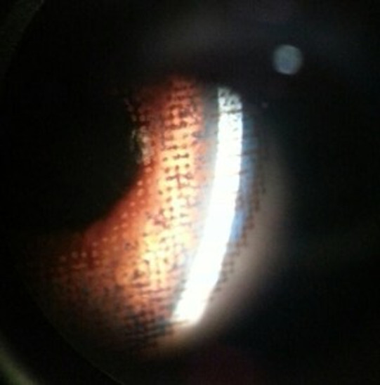 colored contact lens under a slit lamp