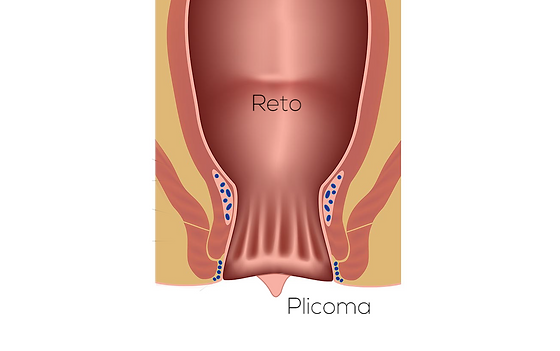 Plicoma.png
