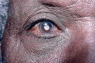 cataract 1.jpg