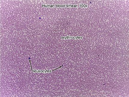 blood-smear-100x-L.jpg