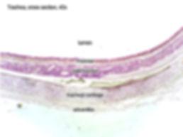 trachea-cs-40x-L.jpg