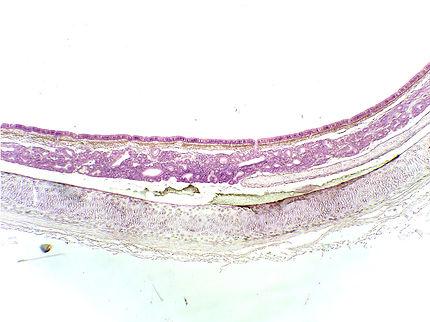 trachea-cs-40x-U.jpg