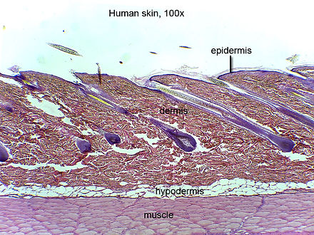 Epidemis,dermis, and hypodermis,100x