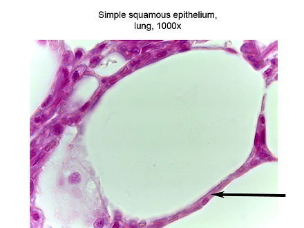 Simple squamous, lung (1000x)