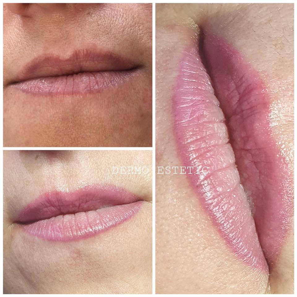 Pigmentation bouche intégrale