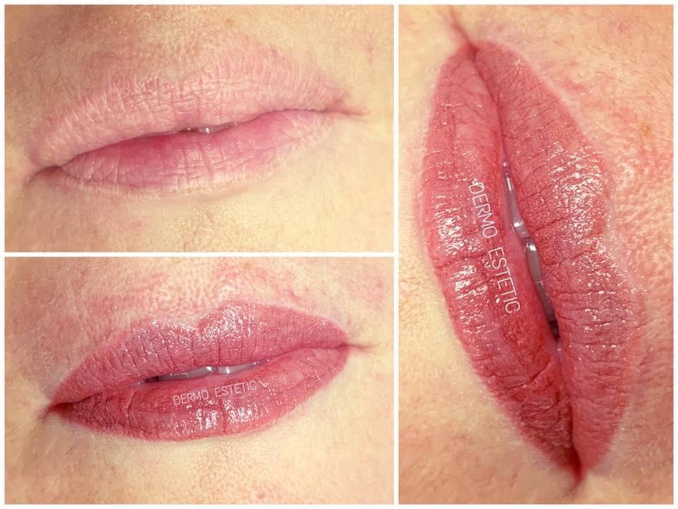 bouche intégrale