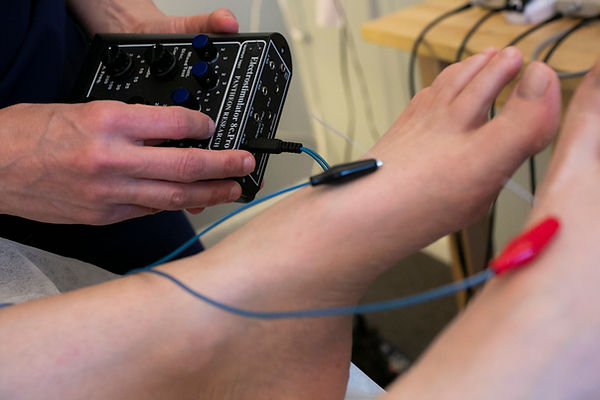 Electroacupuncture machine being used on a foot.jpg