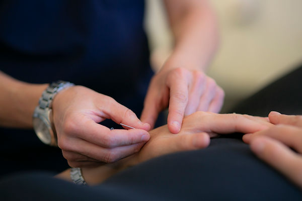 Acupuncturist putting a needle in a patient's hand.jpg