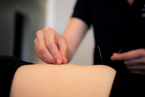 Acupuncturist putting a needle in a patient's abdomen.jpg
