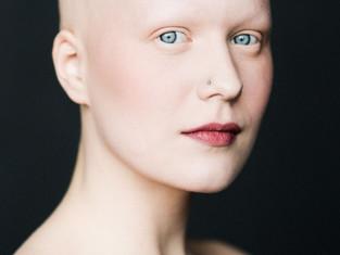 BALDVIN - a força das mulheres com alopecia areata