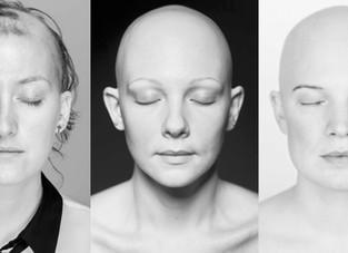 Sono e alopecia areata... qual a relação?