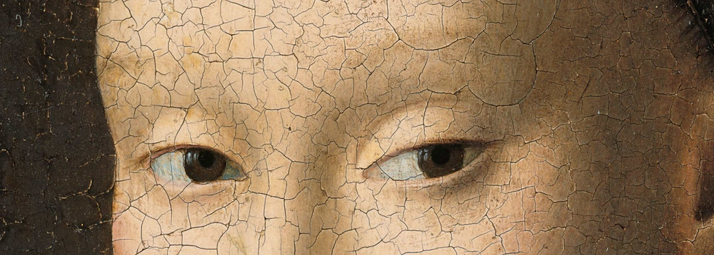 Alopecia de sobrancelhas