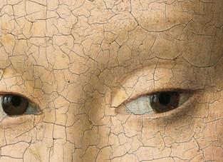 Queda das sobrancelhas pode ser sinal de doença!