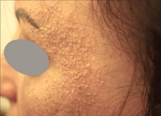 Pápulas faciais na alopecia fibrosante frontal: qual a causa?