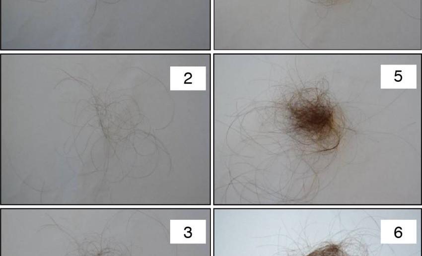 Novo tratamento para queda de cabelo crônica