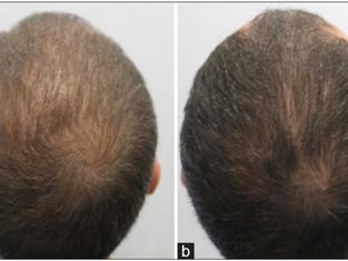 Novo estudo avalia uso da mesoterapia no tratamento da alopecia androgenética