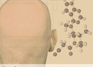 Novo estudo avalia uso de tofacitinib em pacientes com alopecia areata