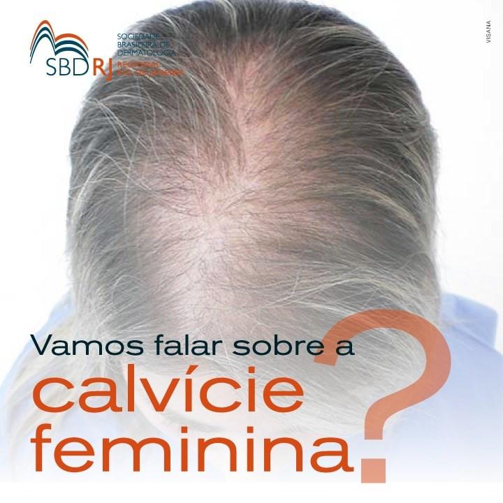 calvície