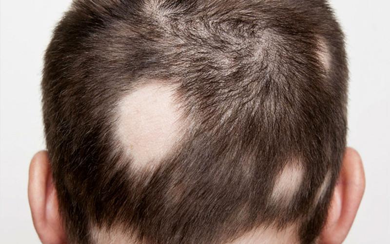 Uma nova classificação para alopecia areata?