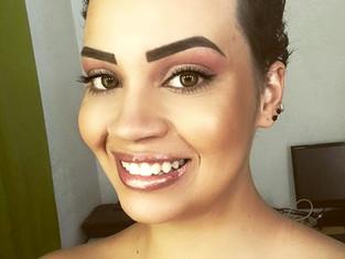 Beleza além dos fios: Projeto captura a beleza de mulheres com alopecia areata.
