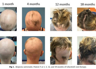 Tofacitinib: Mais um estudo demonstra sucesso terapêutico em adolescentes com alopecia areata
