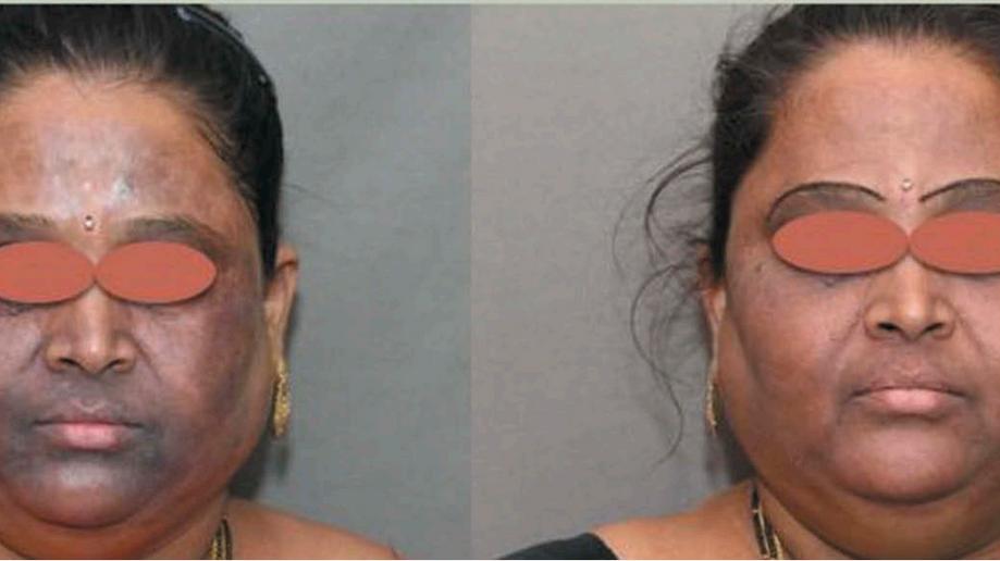 Laser trata manchas escuras relacionadas à alopecia fibrosante frontal