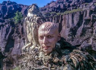 Joseph Gatt: ator com alopecia areata universal já estrelou séries como Game of Thrones