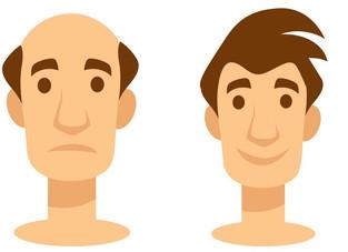 Minoxidil oral versus tópico: qual é o mais eficaz na calvície?