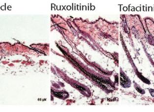 Inibidores da Janus kinase: novas indicações além da Alopecia Areata?