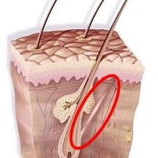 Pesquisadores identificam substância com potencial de prevenir a alopecia por tração