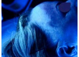 Redução dos melanócitos em pacientes com alopecia fibrosante frontal