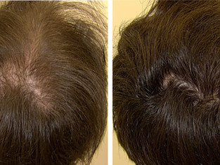 Minoxidil oral em baixas doses no tratamento da calvície masculina