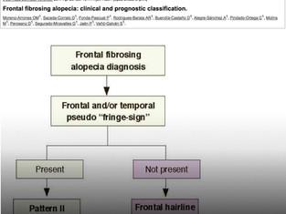Alopecia Fibrosante Frontal: Novo estudo propõe classificação clínica e apresenta fatores prognóstic