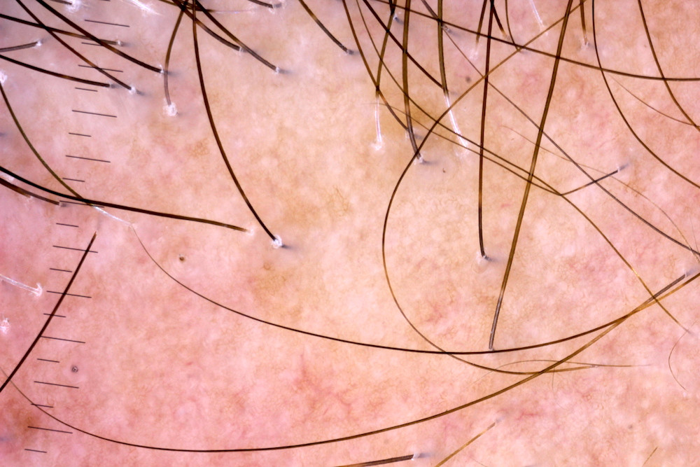 Alopecia Fibrosante Frontal
