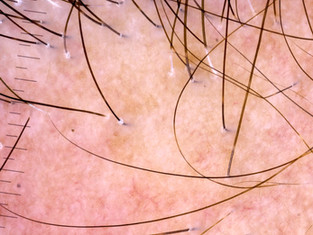 Alopecia Fibrosante Frontal: uma epidemia crescente