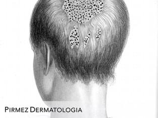 Micose do couro cabeludo em crianças (tinea capitis): Qual é o melhor tratamento?