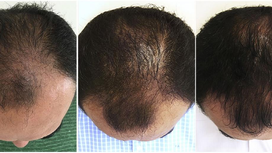 Mesoterapia: ótimos resultados no tratamento da calvície