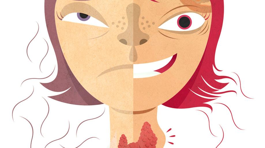 Líquen plano pilar: quais doenças podem estar associadas?
