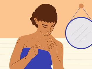 Pintas pelo corpo: Quando é preciso acompanhá-las de perto?