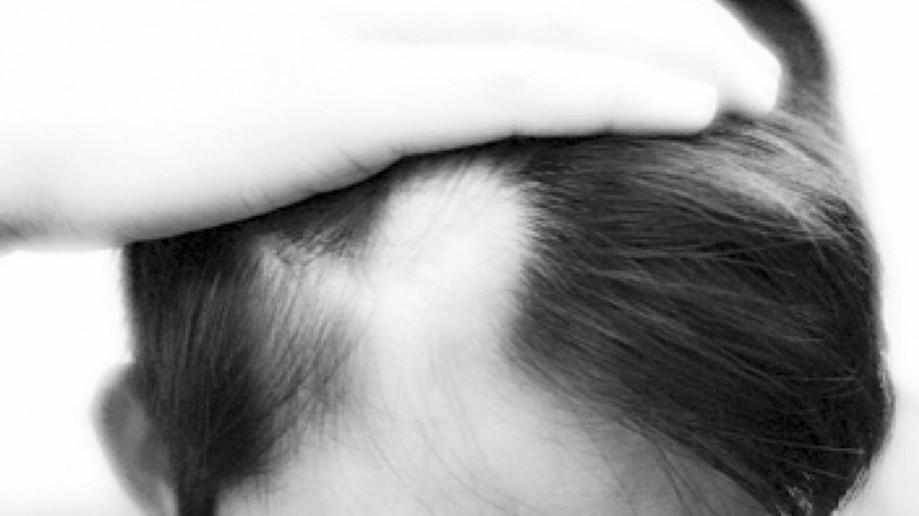 Alopecia areata: maior risco de depressão?